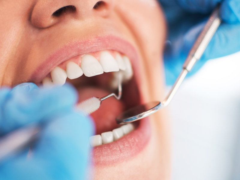 Close-up of woman having teeth examined by a dental professional